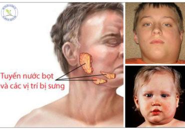 Phương pháp điều trị bệnh quai bị từ đông y
