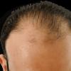 Kiến thức về rụng tóc: Nguyên nhân, cách điều trị và ngăn ngừa