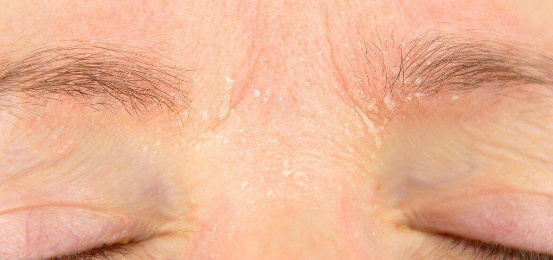 Tìm hiểu về những nguyên nhân gây nên gàu trên lông mày