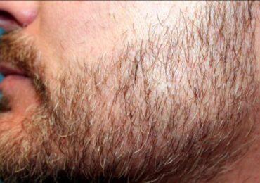 Tìm hiểu 6 nguyên nhân gây rụng râu và cách khắc phục