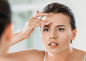 Tìm hiểu về tình trạng mụn trứng cá trên lông mày và phương pháp điều trị